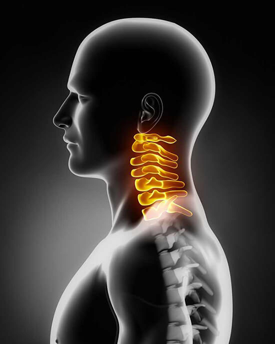 nyaki fájdalom hogyan kezelhető