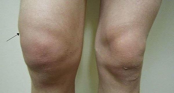 térdízület ízületi gyulladásos kezelése)