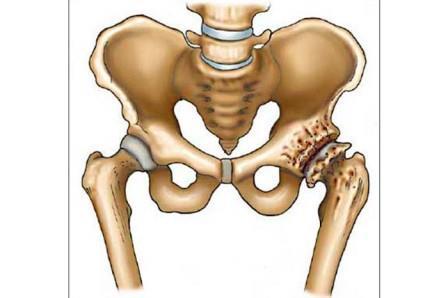 csontritkulás a csípőízület artrózisának kezelésében