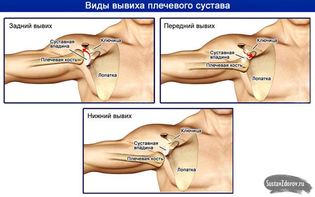 a vállízület ligamentumainak sérülése
