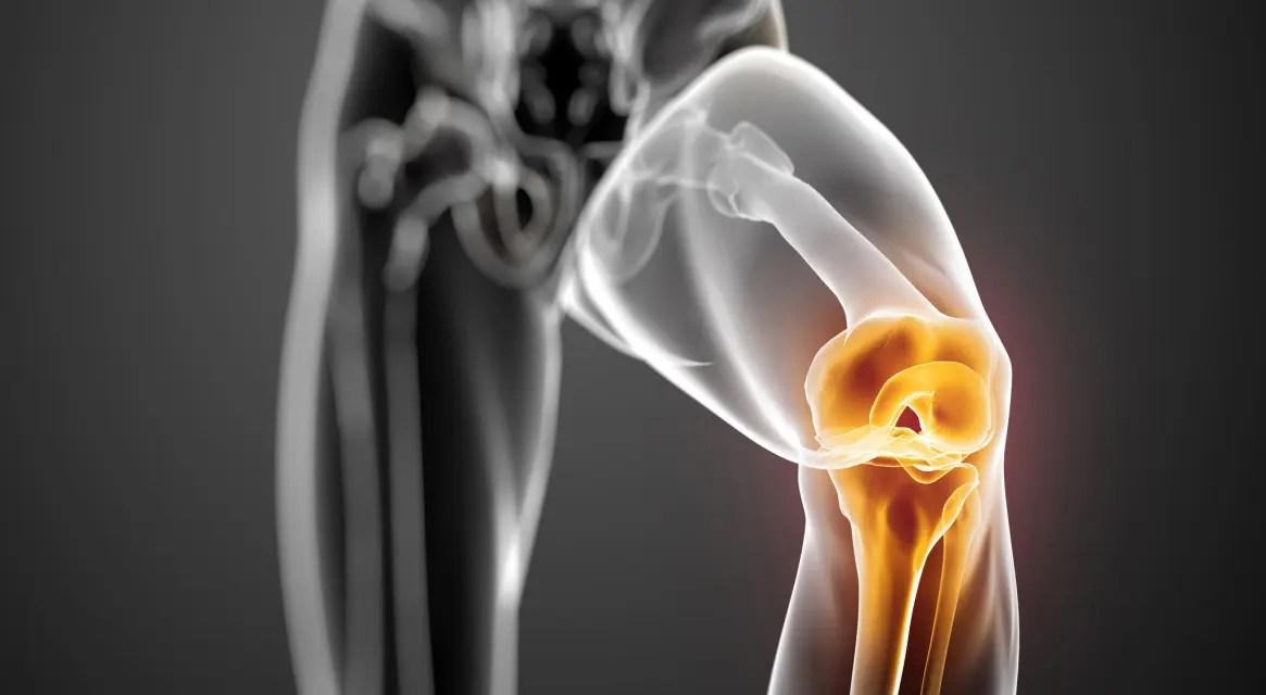 Térdfájdalom nem műtéti kezelése | budapest-nurnberg.huán István ortopéd sebész praxisa