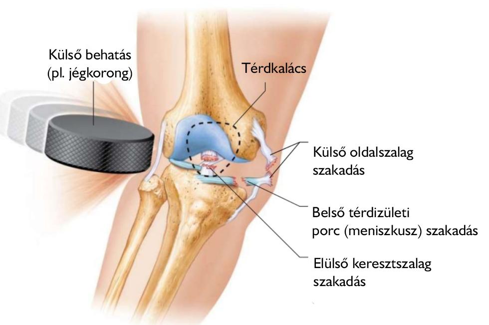 térdízület lágyszöveti ödéma térdrugás és fájdalom kezelése