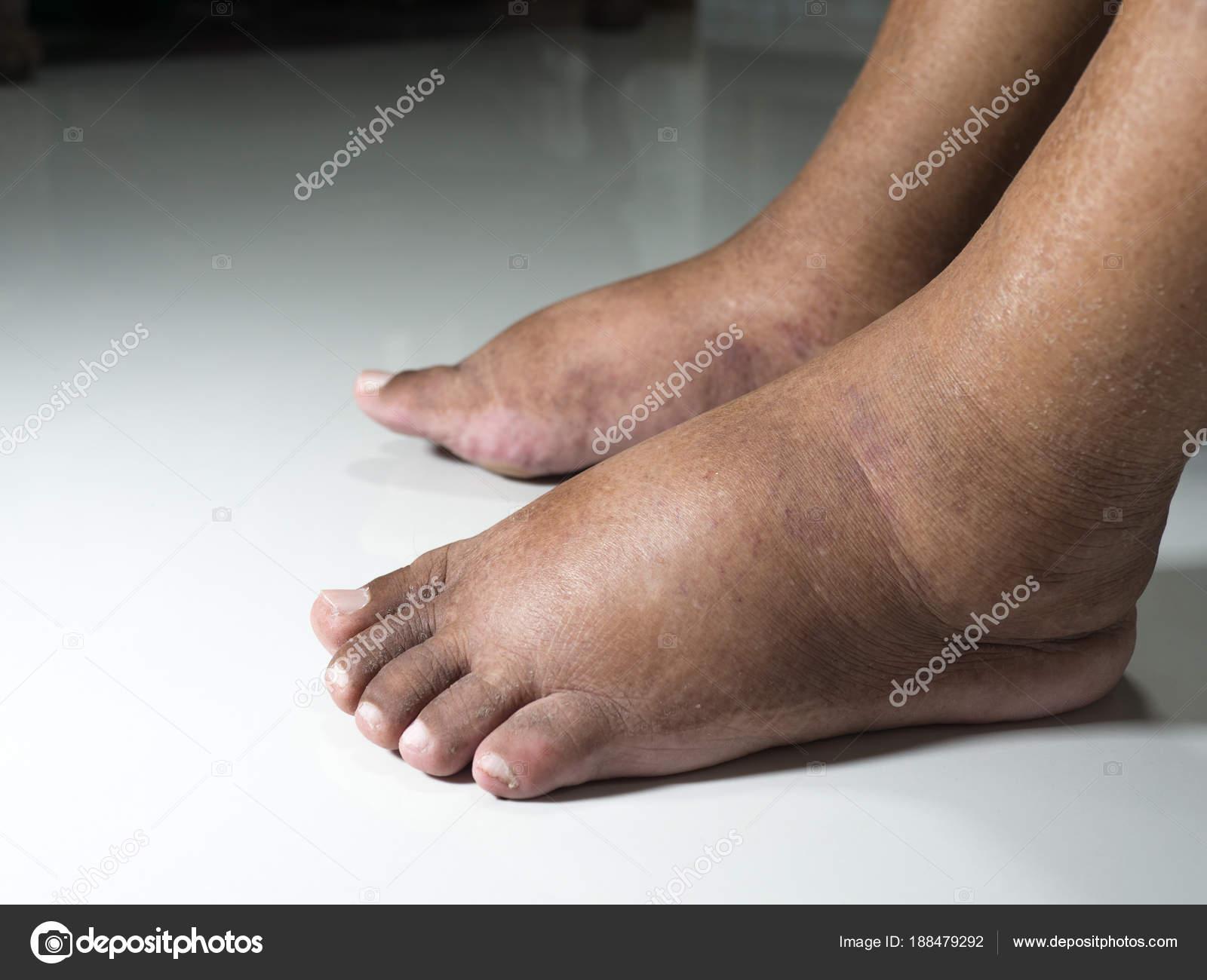 mit duzzad a láb ízületei gyógynövények összetétele ízületi fájdalmak kezelésére