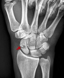 mi az ujjak ízületeinek ízületi gyulladása éjszakai fájdalom az ízületek csontainál