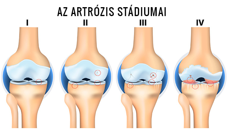 artrózisos betegség kezelésére utaló jelek)