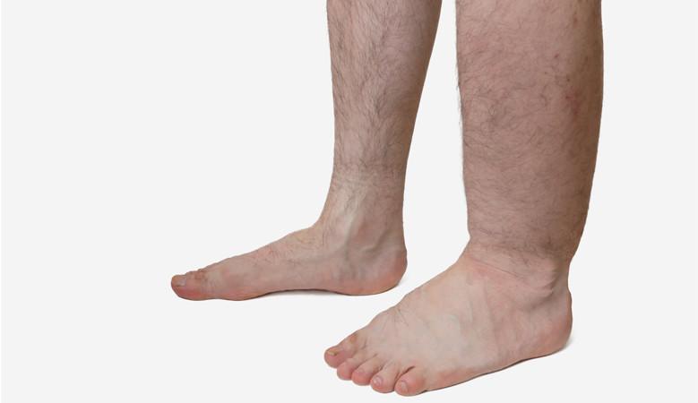 a jobb láb duzzanata a lábízületben)