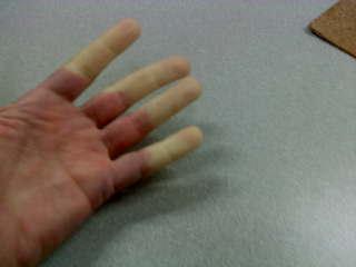 a hüvelykujj együttes kezelése