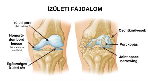 csukló fájdalom a hátán