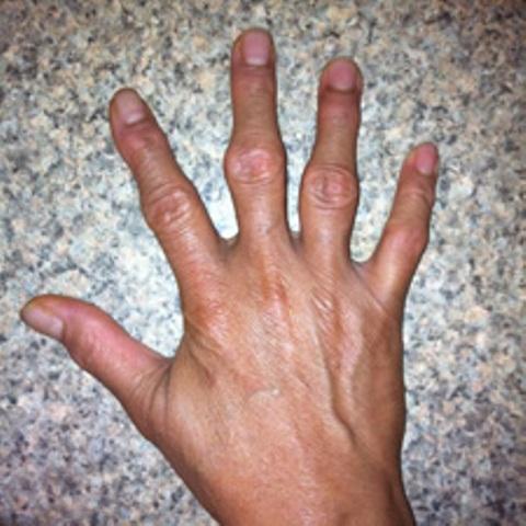 a kezek ízületeinek nodularis artrózisa