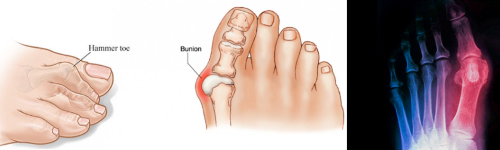 Külső lábfájdalom okai és kezelése gyógytornával
