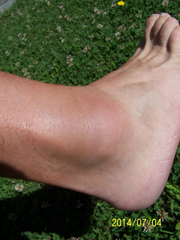 a lábak duzzanata fájdalmas ízületekkel váll neuralgia tünetek kezelése