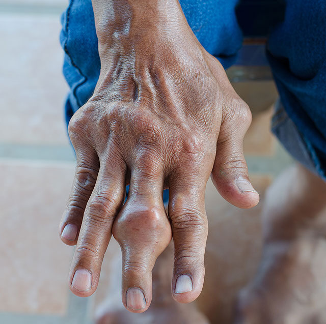 a lábak és a karok ízületi gyulladása