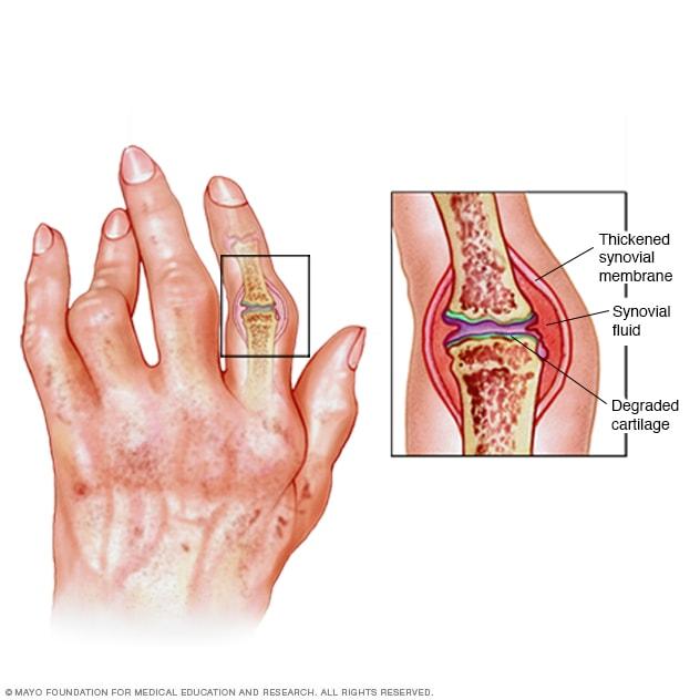 a rheumatoid arthritis arthrosis kezelése)