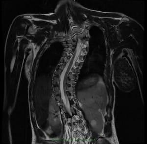 Szisztémás szklerózis (M34) - A nyomás