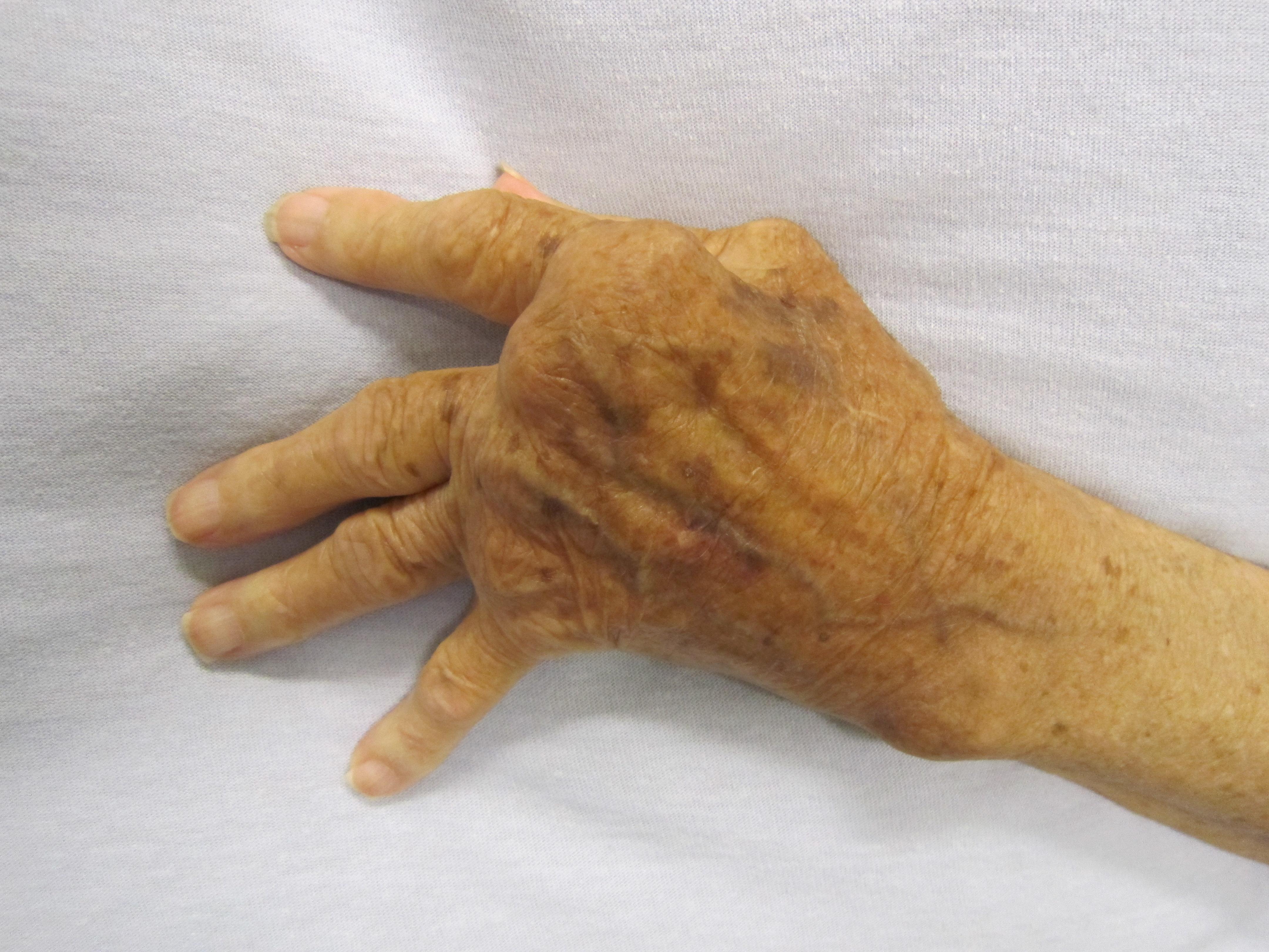 a térd artritisz típusai