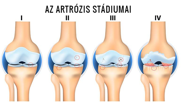 a térd lézeres artrózisa