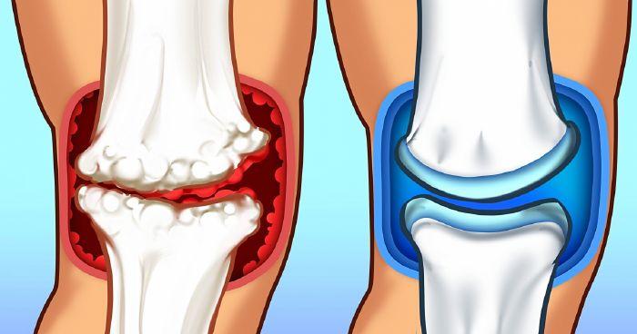 lehetséges melegedni a térd artrózisára