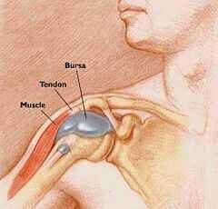 a vállízület bursitis kezelése)