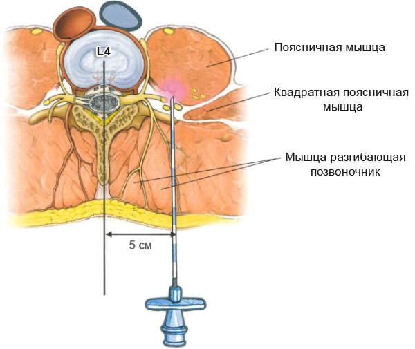 endometriosis és a csípőízület fájdalma