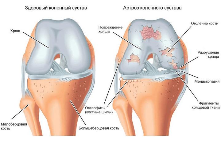 kompressziós súlyos ízületi fájdalom esetén a könyökízület osteochondroze 1 fok
