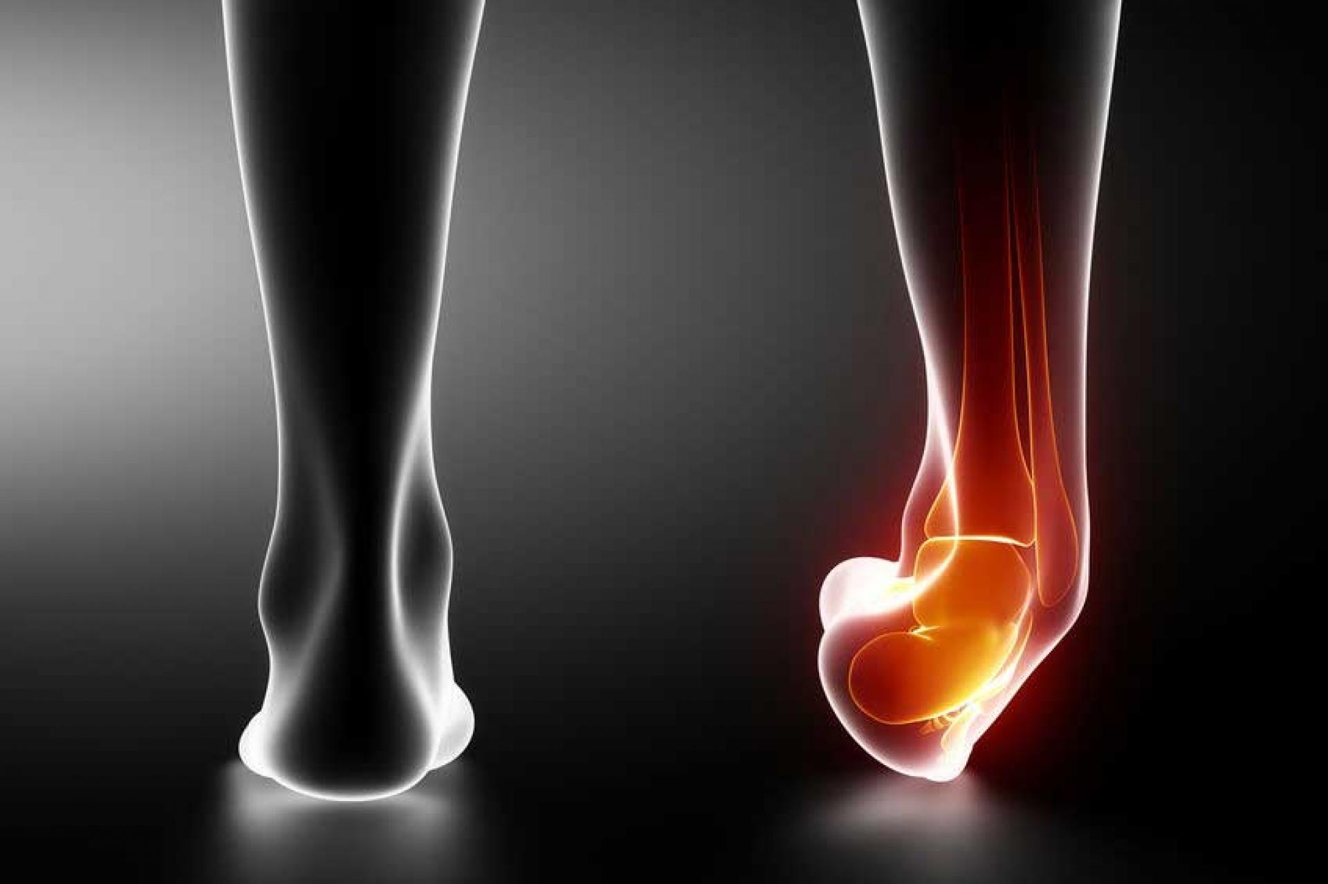 összeroppant és fáj a bokaízület