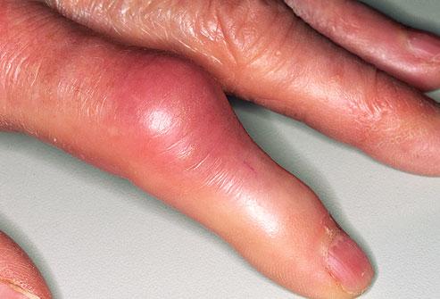 méz és mazsolát ízületi fájdalmak kezelésére