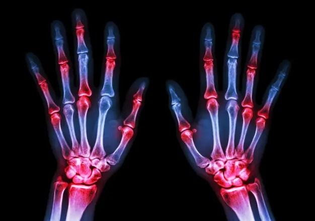 a rheumatoid arthritis elsősorban az ízületeket érinti)