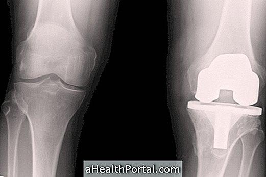 5 tipp a térd- és csípőprotézis elkerülésére - Gerinces:blog, a hátoldal