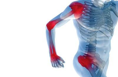futni, amikor az ízületek fájnak injekcióval történő kezelés izületi gyulladás és ízületi gyulladás esetén