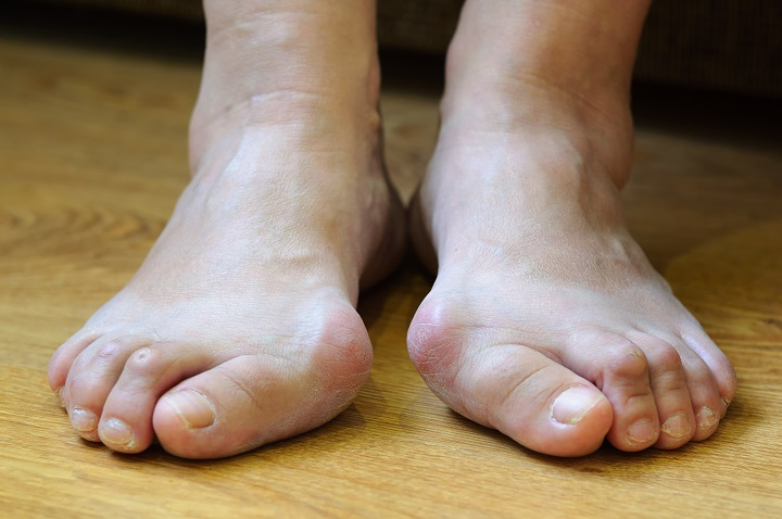 akut fájdalom a lábujjak ízületeiben