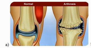 artrózis kezelése idős korban