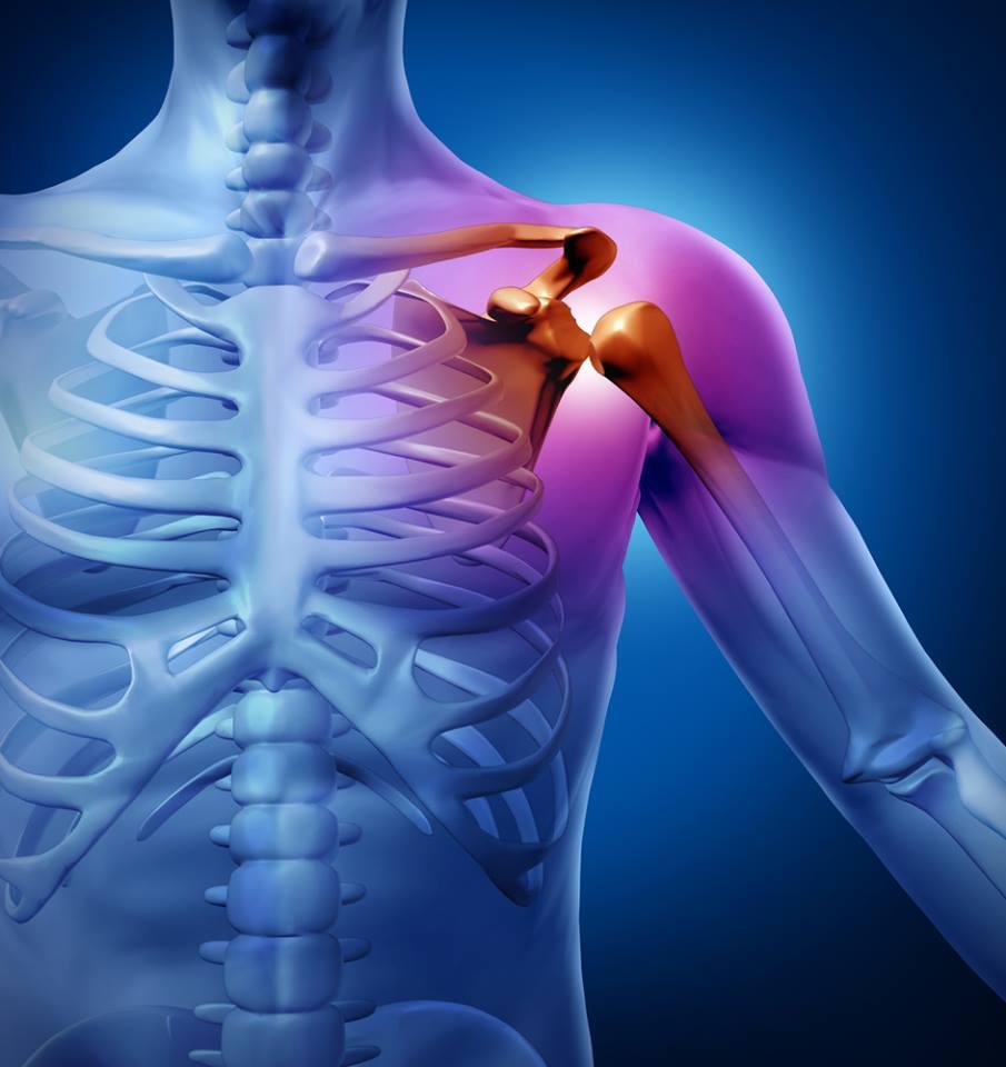 artrózis és a vállízület bursitisz