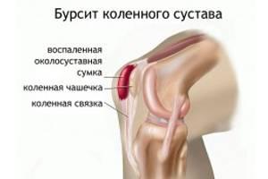 artrózis térdmozgással)