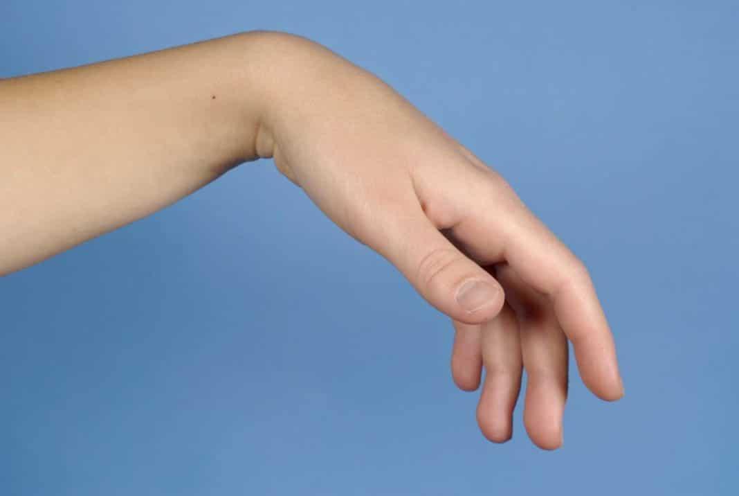 az alkar és a kéz könyökízületének károsodása