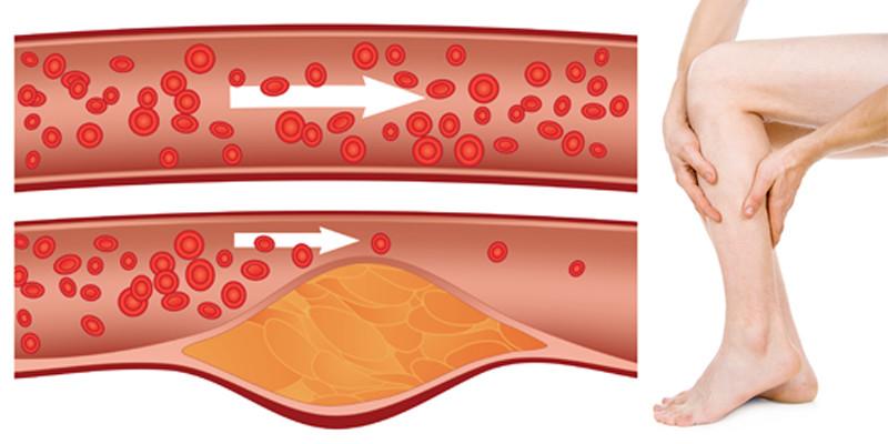csonttörés ízületi kezelés ízületek cserzés után