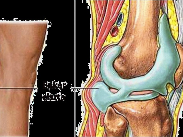 Az artrózis kezelés kezdeti megnyilvánulása - Egészségünk ártalmai