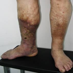 az erek alsó végtagjai artrózisának kezelése közös paprika