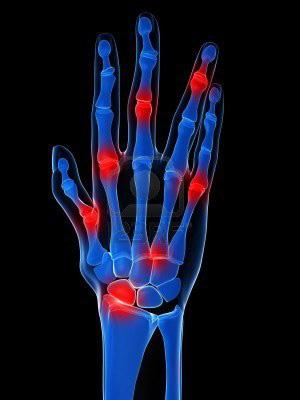 az ujjak és a vállak ízületeinek ízületi gyulladása)