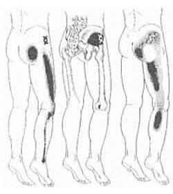 esés után a csípőízület fájdalma