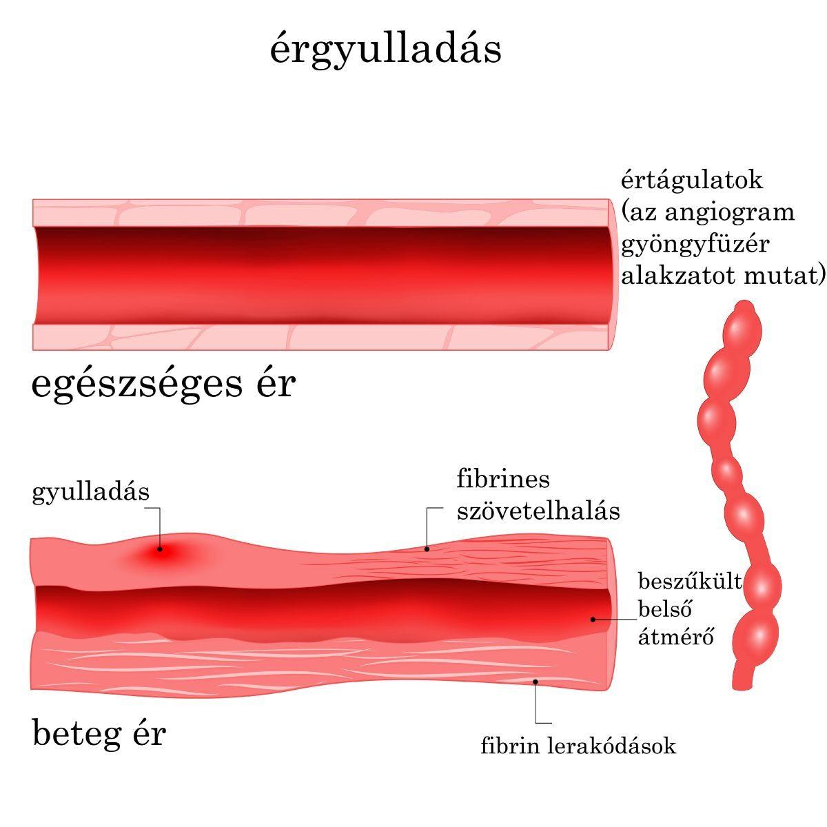 az erek alsó végtagjai artrózisának kezelése kenőcs myositis és osteochondrosis esetén
