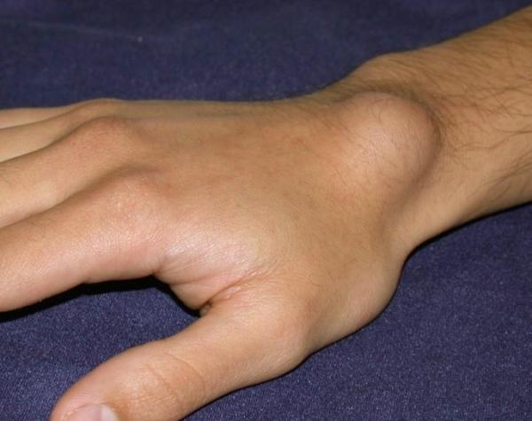 heves fájdalom a kéz csuklójában