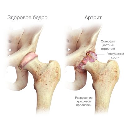 csípőízület coxarthrosis 2 fokos kezelési módszerei)