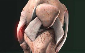 ízületi fájdalmak a lábujjak a lábak duzzanata fájdalmas ízületekkel