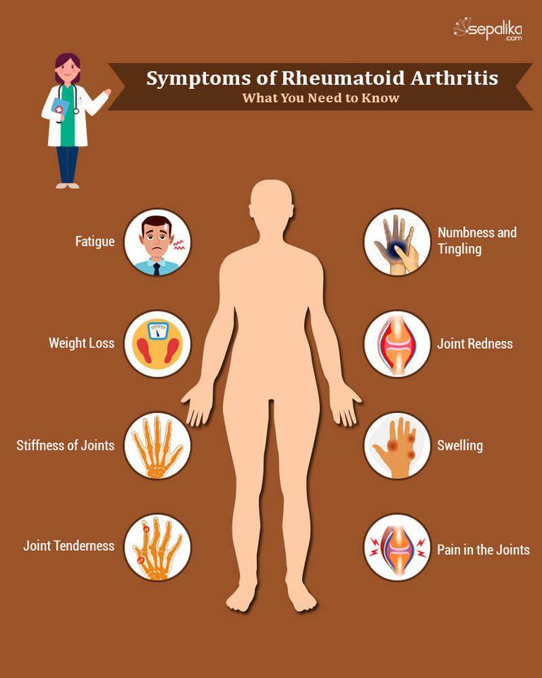 rheumatoid arthritis folyadék az ízületekben)