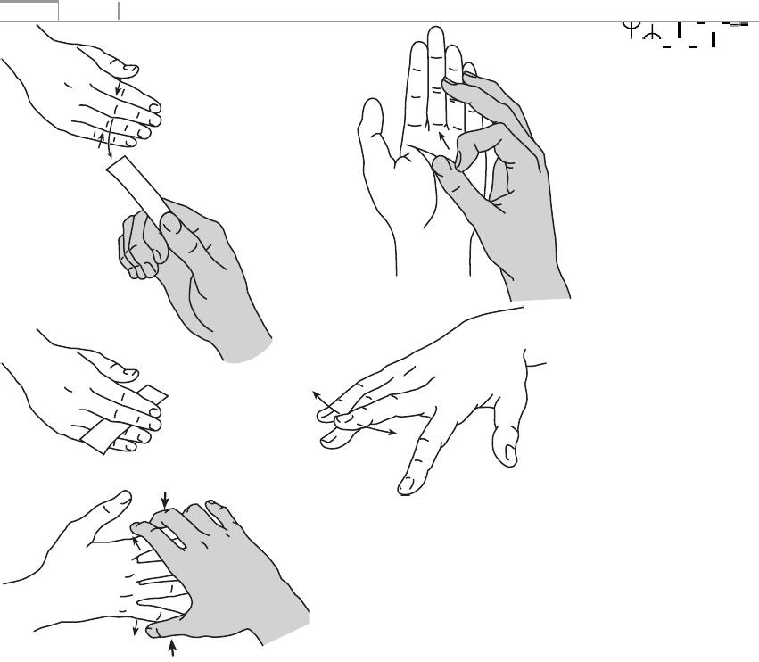 hogyan lehet kezelni az artrózist a kezében
