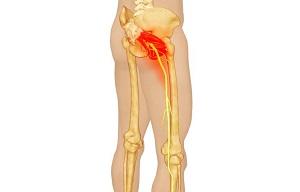 csípőfájdalom roham ízületi porcszövet helyrehozó gyógyszerek