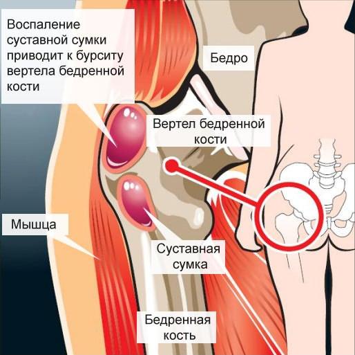 ágyék fájdalom a csípőben)