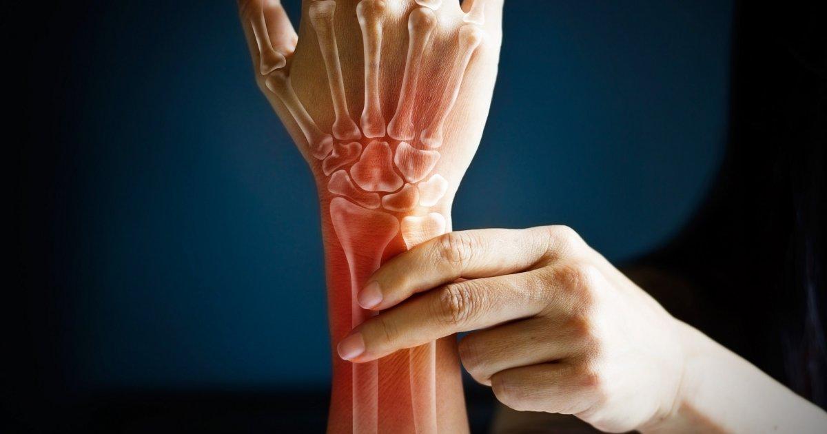 ízületi fájdalom és premenopauza ízületi fájdalom kezelése a sportolókban