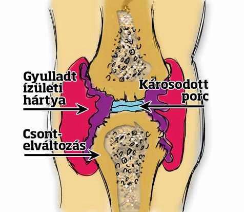 a fájdalom oka és a térd deformációja