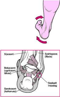 boka rándulás helyreállítása fájdalom a csípőízületben és a sacrumban